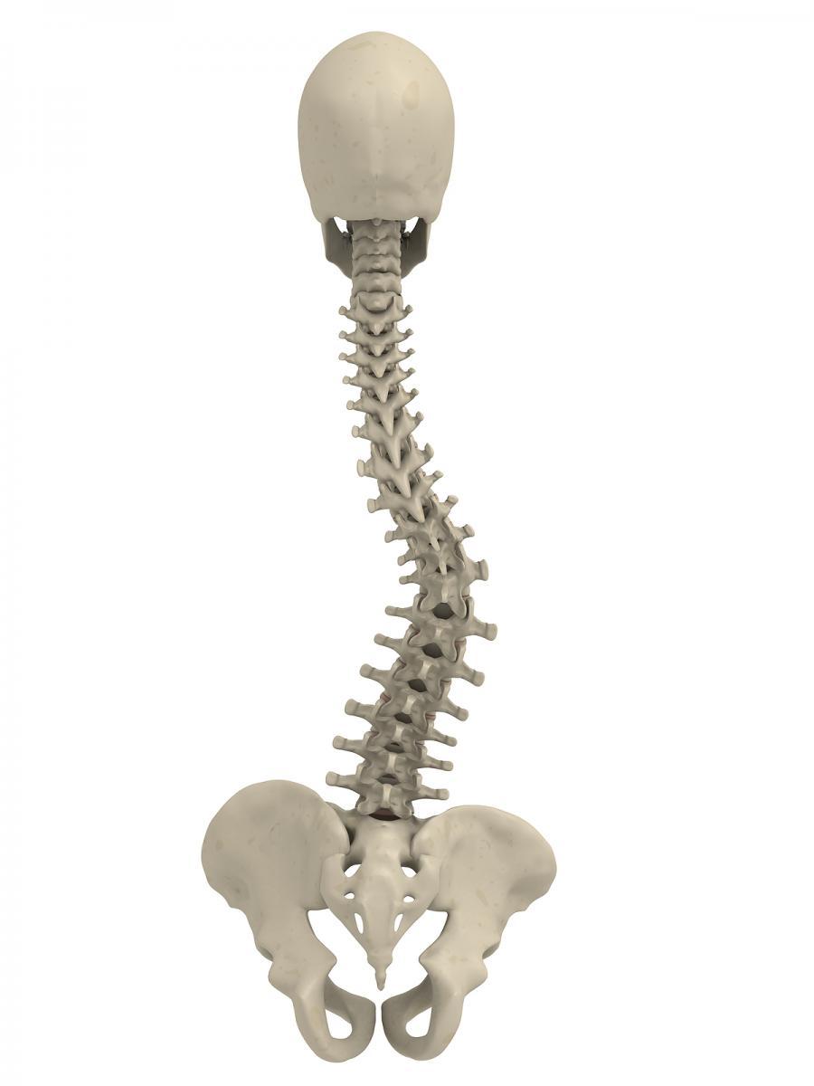 Condition Scoliosis